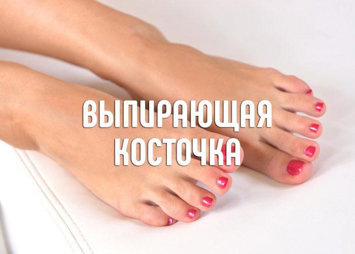 косточка (1)
